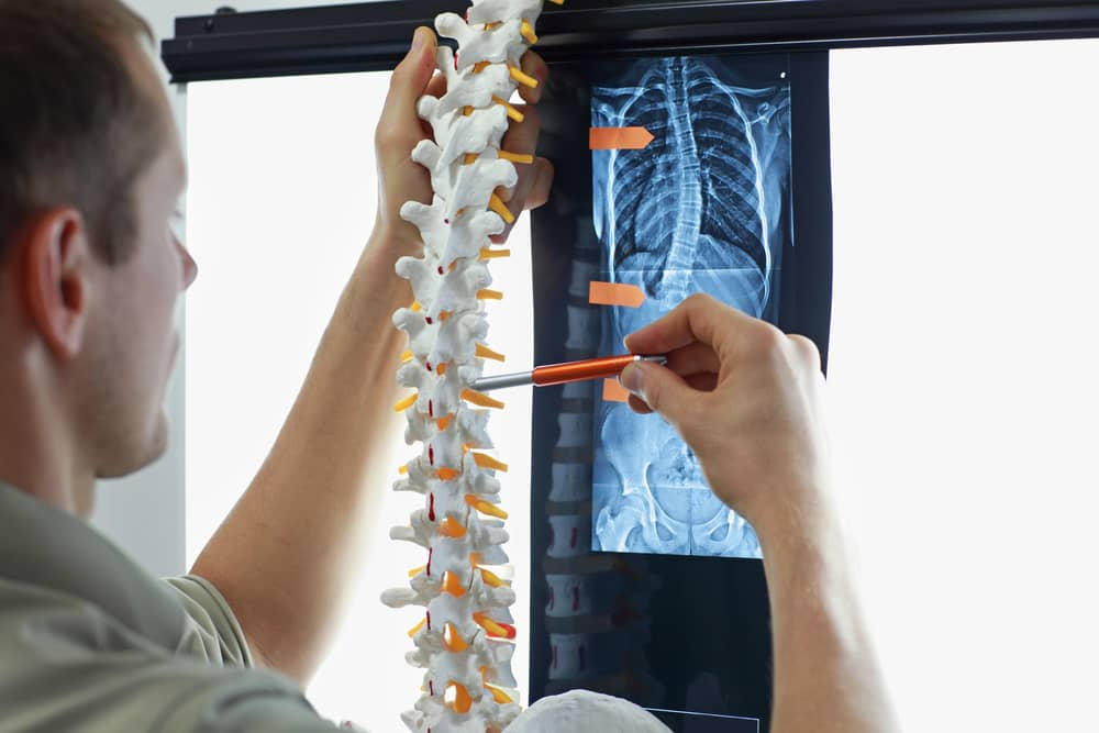 Doctor looking at a spine model for scoliosis treatment.